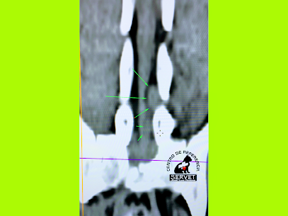 Imagen tomográfica de un tumor de canal medular en un perro