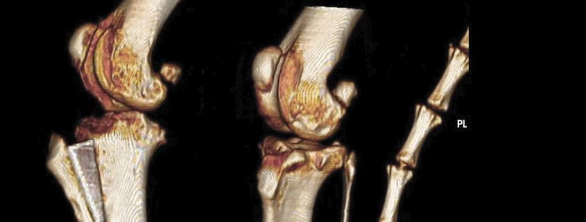 TTA en tomografía 3D y radiografía