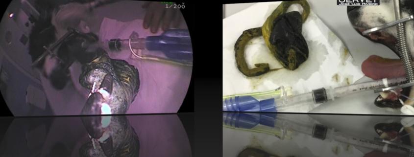 Cuerpo extraño ecografía y endoscopia