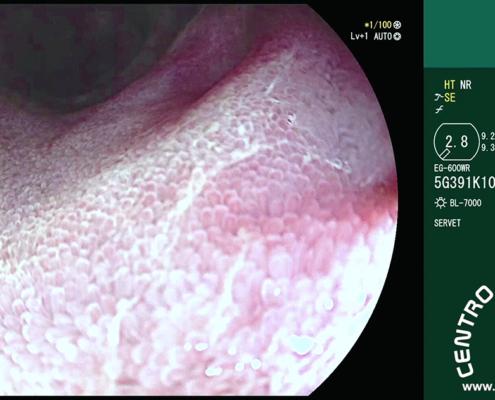 Vellosidades intestinales duodeno
