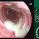 Endoscopia Laringotraqueitis
