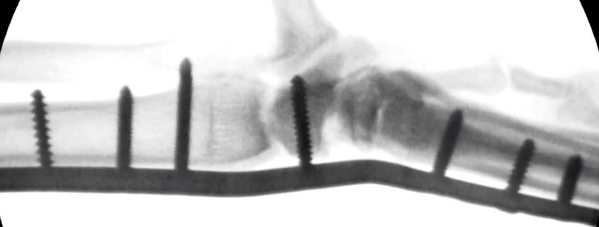 artrodesis carpo